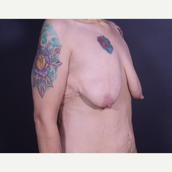 35-44 year old woman treated with Breast Lift with Implants before 3585895