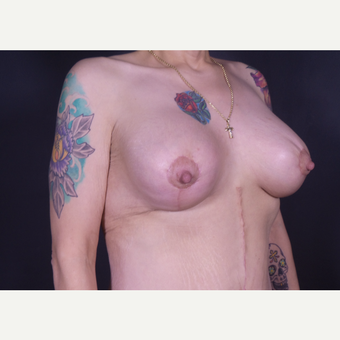35-44 year old woman treated with Breast Lift with Implants after 3585895