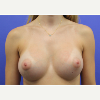 25-34 year old woman treated with Breast Augmentation after 3200928