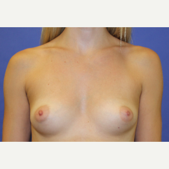 25-34 year old woman treated with Breast Augmentation before 3200928