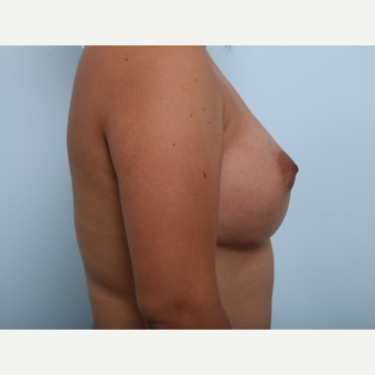 Breast Augmentation after 3345837
