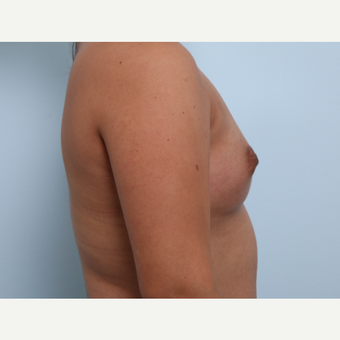 Breast Augmentation before 3345837