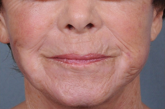 Dermabrasion for upper lip lines after 1238845