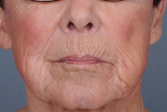 Dermabrasion for upper lip lines before 1238845