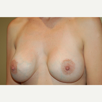 25-34 year old woman treated with Breast Implants after 3752559