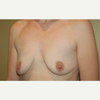 25-34 year old woman treated with Breast Implants before 3752559