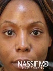 African American Female Rhinoplasty  after 960131