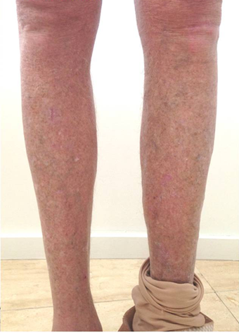 Expert Varicose Vein Treatment - 45-54 year old man treated with EVLT