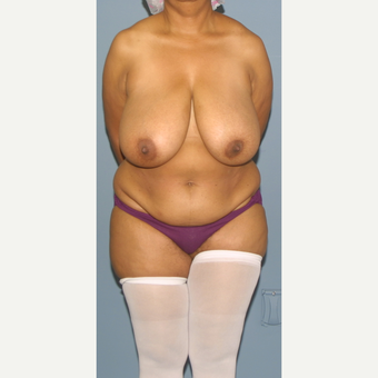 45-54 year old woman treated with Breast Reduction before 3452668