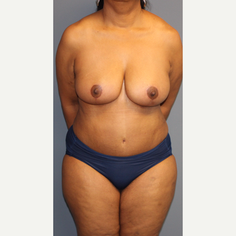 45-54 year old woman treated with Breast Reduction after 3452668