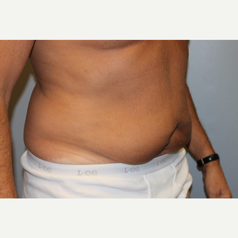 55-64 year old man treated with Tummy Tuck before 3529079