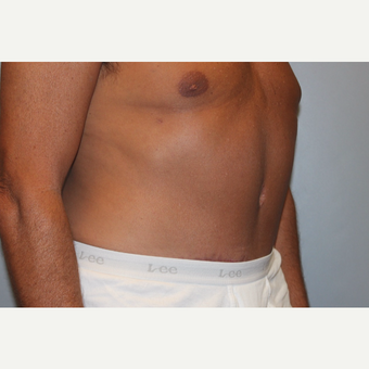 55-64 year old man treated with Tummy Tuck after 3529079