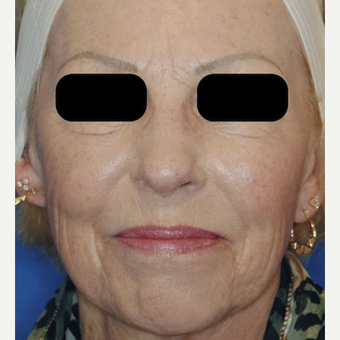 Sculptra Cheek Filler 55-64 Year Old Female