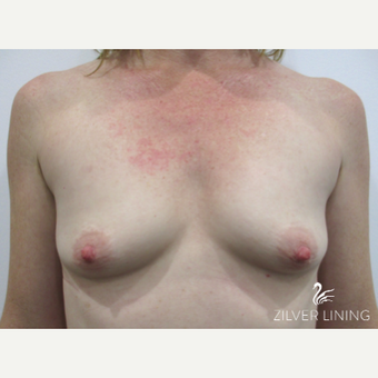 35-44 year old woman with mild tuberous breasts treated with Breast Implants before 2500077