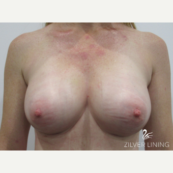 35-44 year old woman with mild tuberous breasts treated with Breast Implants after 2500077