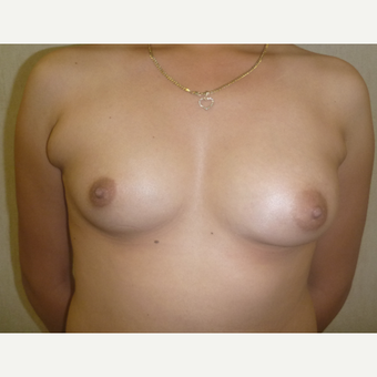 18-24 year old woman treated with Breast Augmentation before 3288161