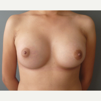 18-24 year old woman treated with Breast Augmentation after 3288161
