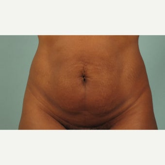 45-54 year old woman treated with Tummy Tuck before 2527363
