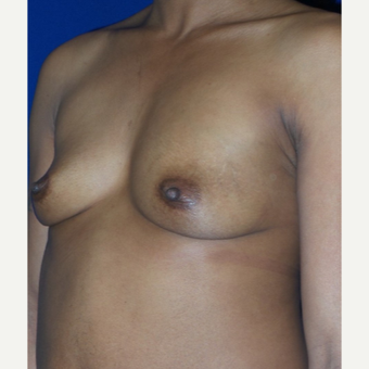 37 year old mother of three treated with Breast Augmentation before 3320069
