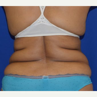 55-64 year old woman's Back Rolls treated with Liposuction before 2917084