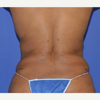 55-64 year old woman's Back Rolls treated with Liposuction after 2917084