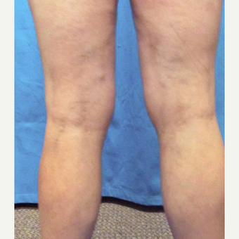 45-54 year old woman treated with Vein Treatment after 3041973