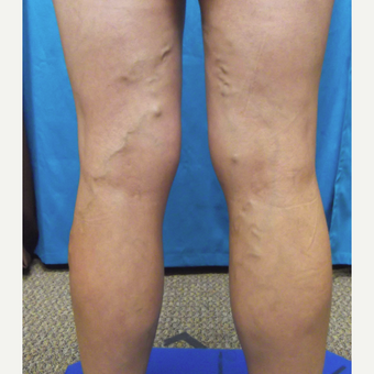 45-54 year old woman treated with Vein Treatment before 3041973