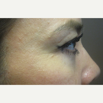 35-44 year old woman treated with lower eyelid Surgery after 3219173