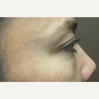 35-44 year old woman treated with lower eyelid Surgery before 3219173