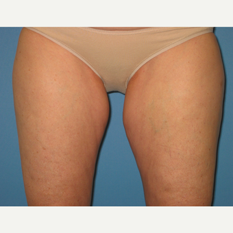 45-54 year old woman treated with CoolSculpting before 2906259