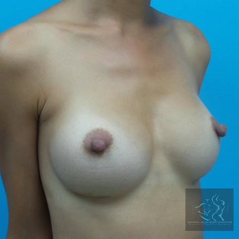 25-34 year old woman treated with Breast Augmentation after 3095151