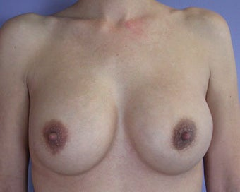 Breast Implant Correction after 281304