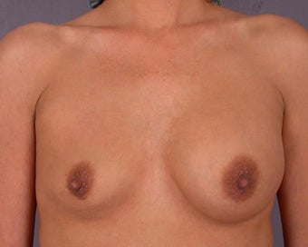 Breast Implant Correction before 281304
