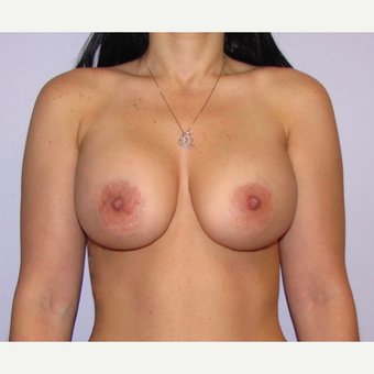 25-34 year old woman treated with Breast Implants after 3467872