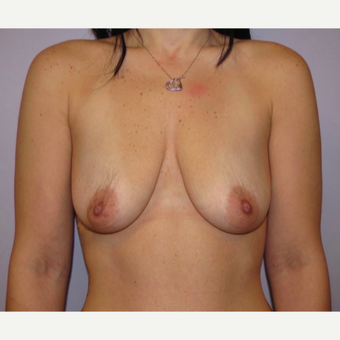 25-34 year old woman treated with Breast Implants before 3467872