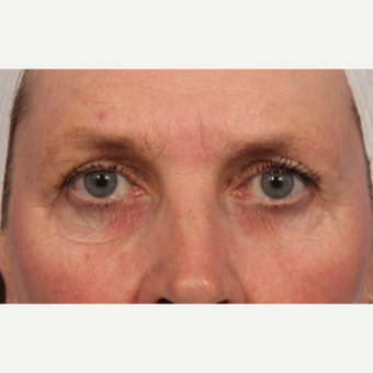 45-54 year old woman treated with Laser Resurfacing before 3657778