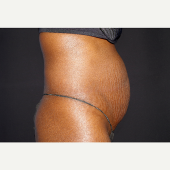 35-44 year old woman treated with Liposuction and Abdominoplasty before 3644710