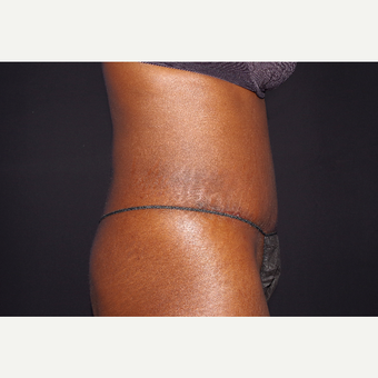 35-44 year old woman treated with Liposuction and Abdominoplasty after 3644710