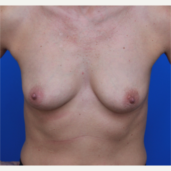44- year old woman treated with Breast Implants before 3124379