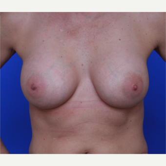 44- year old woman treated with Breast Implants after 3124379