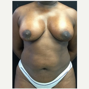 35-44 year old woman treated with Breast Lift with Implants after 3219398