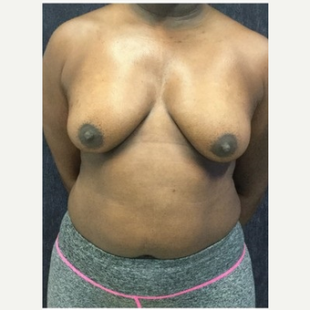35-44 year old woman treated with Breast Lift with Implants before 3219398