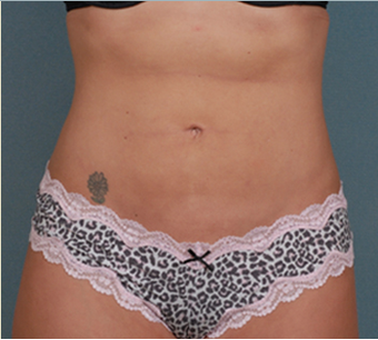 Liposuction after 1378049