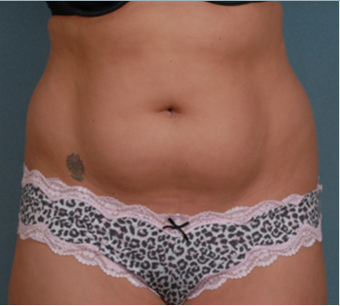 Liposuction before 1378049