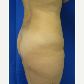 Liposuction before 3094191