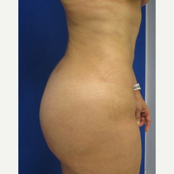 Liposuction after 3094191