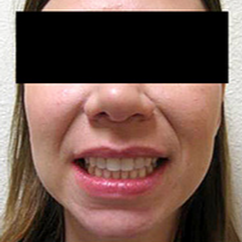 Invisalign after 1784278