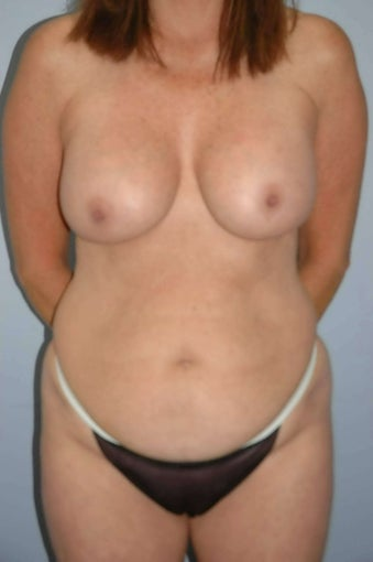 55 year old female, corrective breast surgery with fat grafting  before 1504306