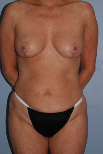 55 year old female, corrective breast surgery with fat grafting  after 1504306