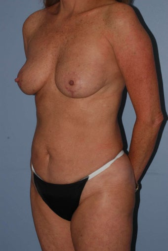 55 year old female, corrective breast surgery with fat grafting  1504306